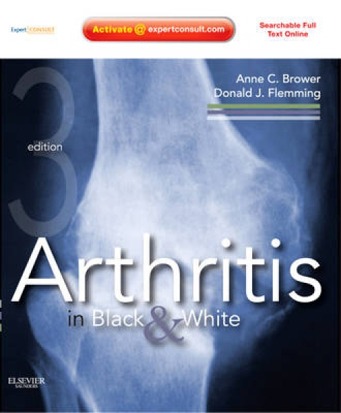 Arthritis in Black and White Anne C. Brower Donald J. Flemming Mixed media produ