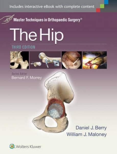 Master Techniques in Orthopaedic Surgery The Hip Daniel J. Berry William Maloney